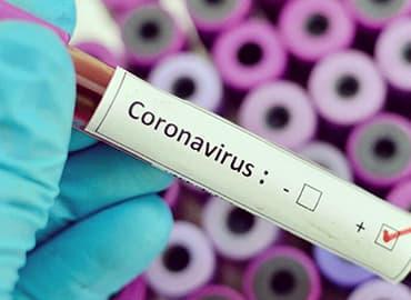 coronavirus 2019-nCoV lo que debes saber origen, tratamiento, sintomas